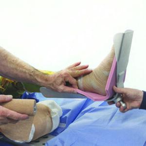 Matrix Disposable Sterile Foam Kit